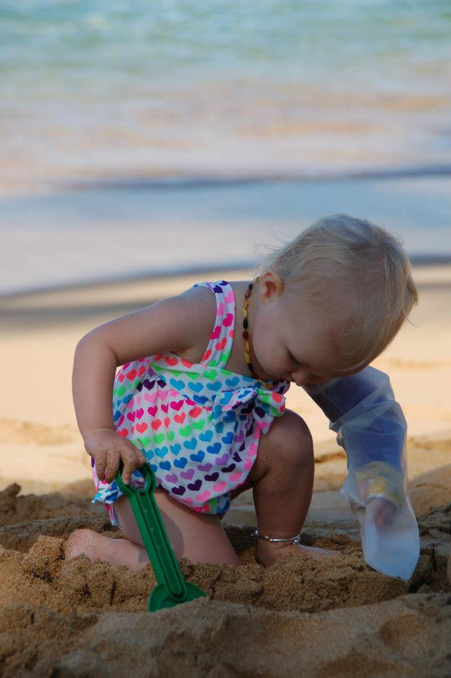 child at beach with cast cover
